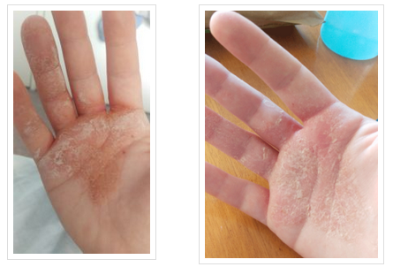 Eczema Free. How I did it.